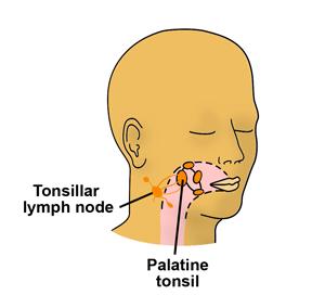 Tonsillitis & tonsillar lymph node